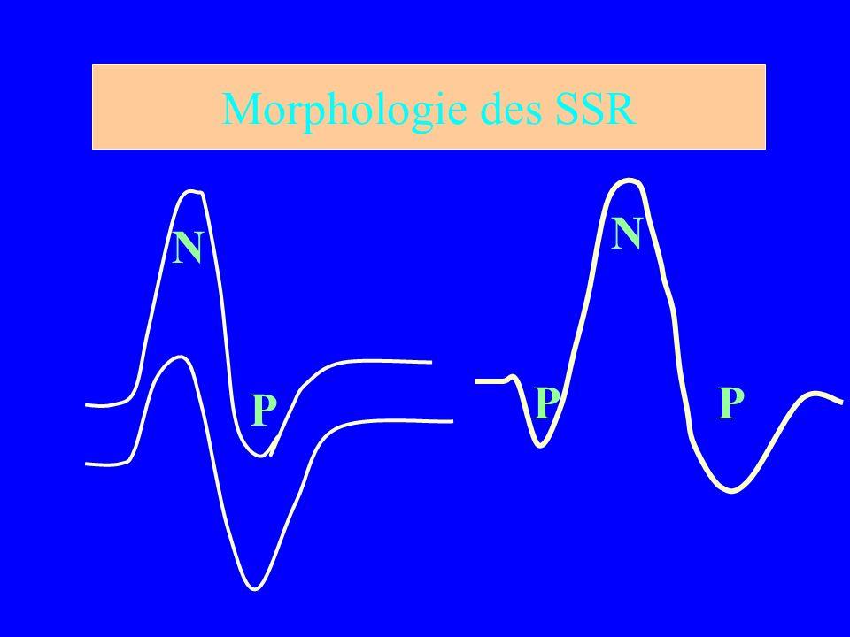 Morphologie des SSR N N P P P