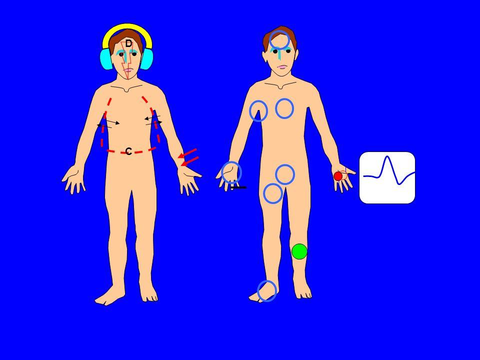 Stimulation Enregistrement D B C A A: Stimulation électrique