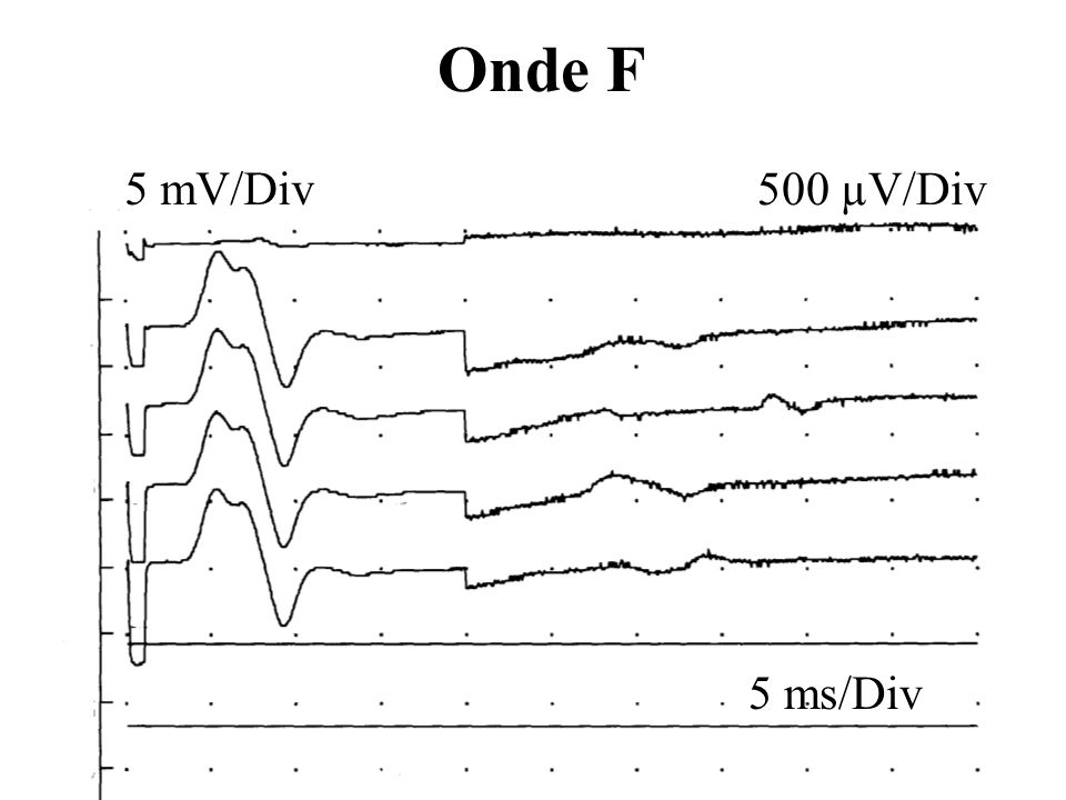 Onde F 5 mV/Div 500 µV/Div 5 ms/Div