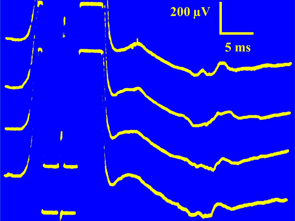 200 µV 5 ms