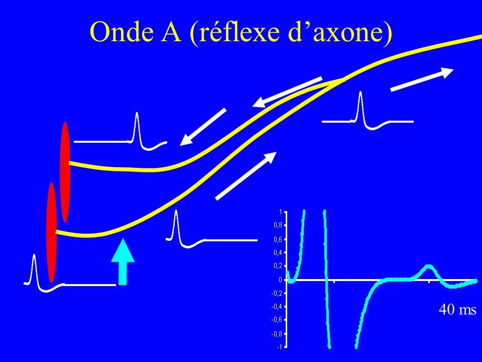 Onde A (réflexe d'axone)