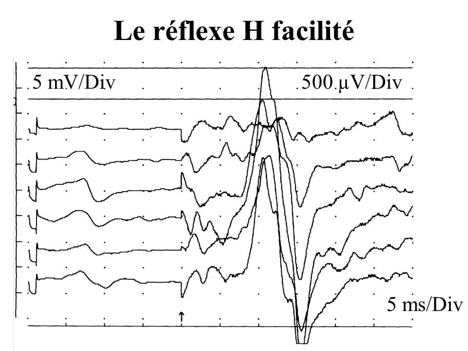 Le réflexe H facilité 5 mV/Div 500 µV/Div 5 ms/Div