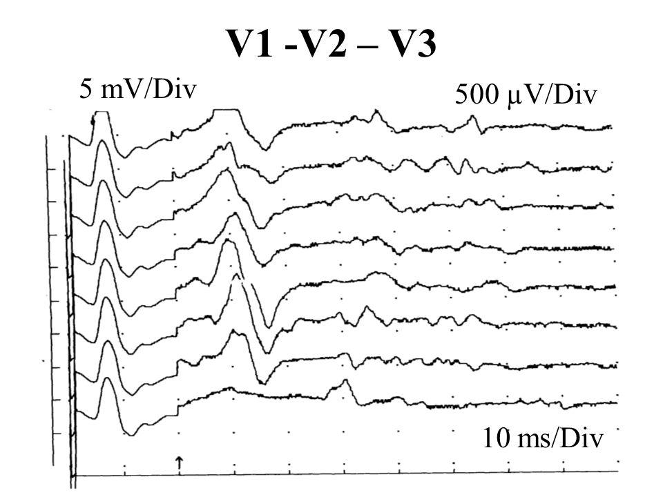 V1 -V2 – V3 5 mV/Div 500 µV/Div 10 ms/Div