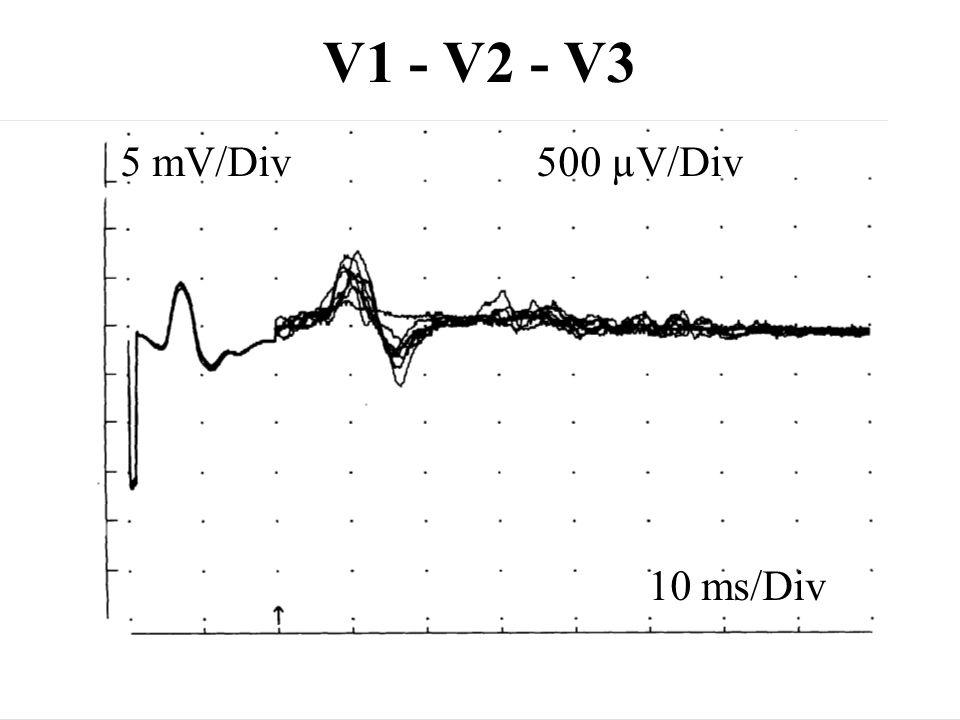 V1 - V2 - V3 5 mV/Div 500 µV/Div 10 ms/Div