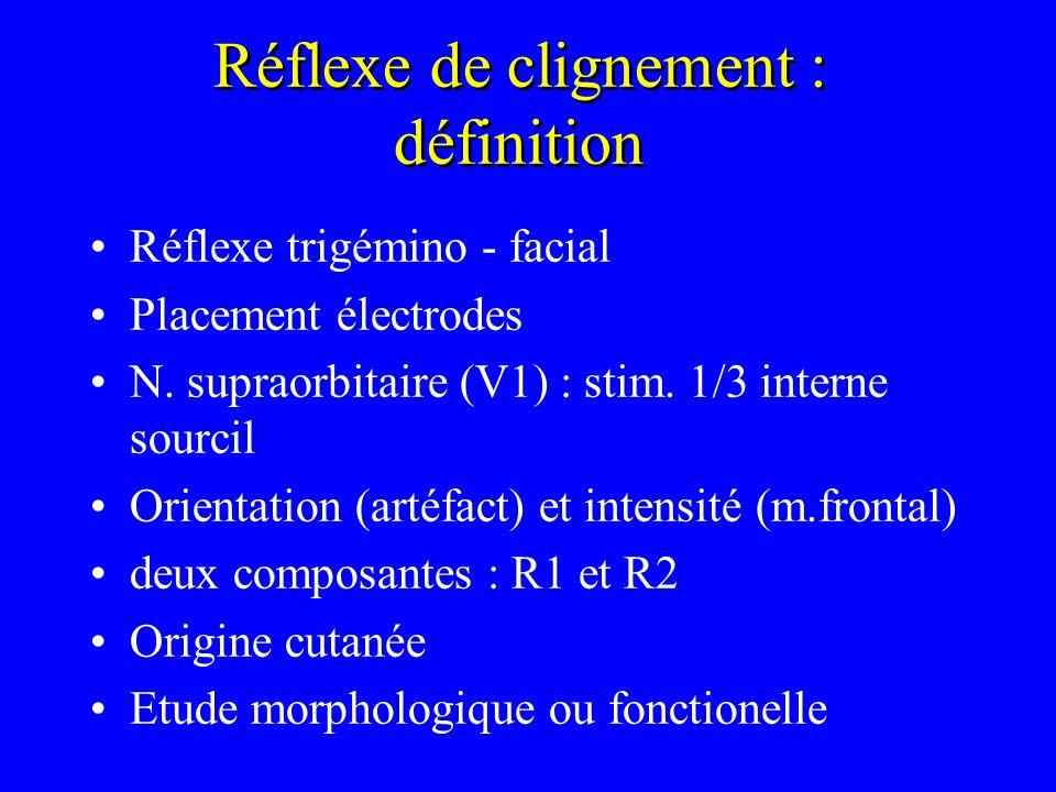 Réflexe de clignement : définition