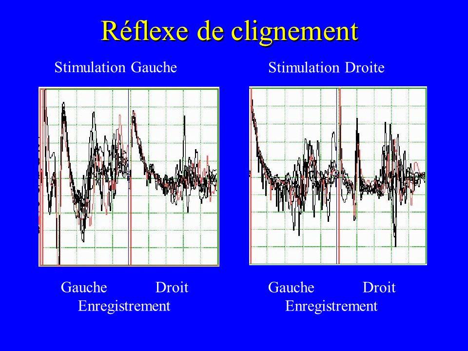 Réflexe de clignement Stimulation Gauche Stimulation Droite