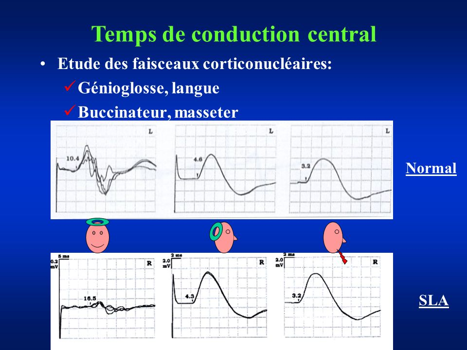 Temps de conduction central
