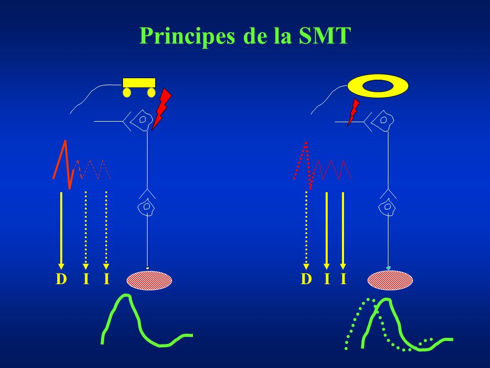 Principes de la SMT D I I D I I