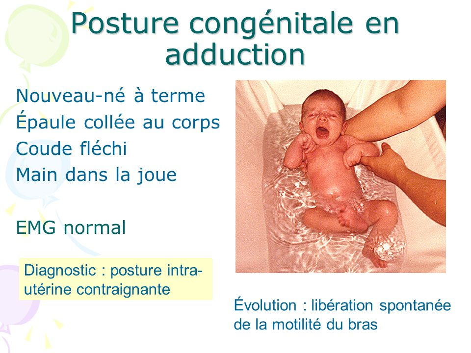 Posture congénitale en adduction