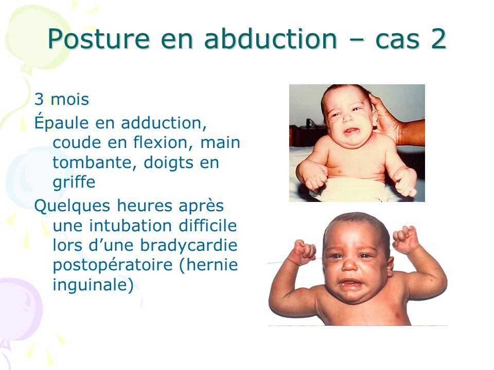 Posture en abduction – cas 2