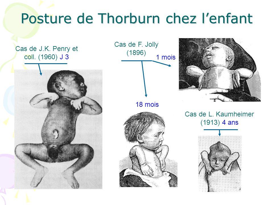 Posture de Thorburn chez l'enfant