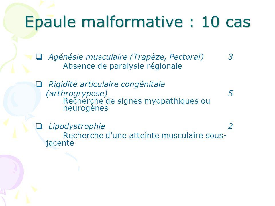 Epaule malformative : 10 cas