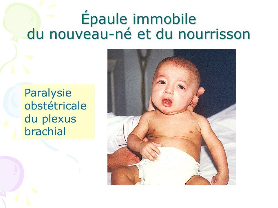 Épaule immobile du nouveau-né et du nourrisson