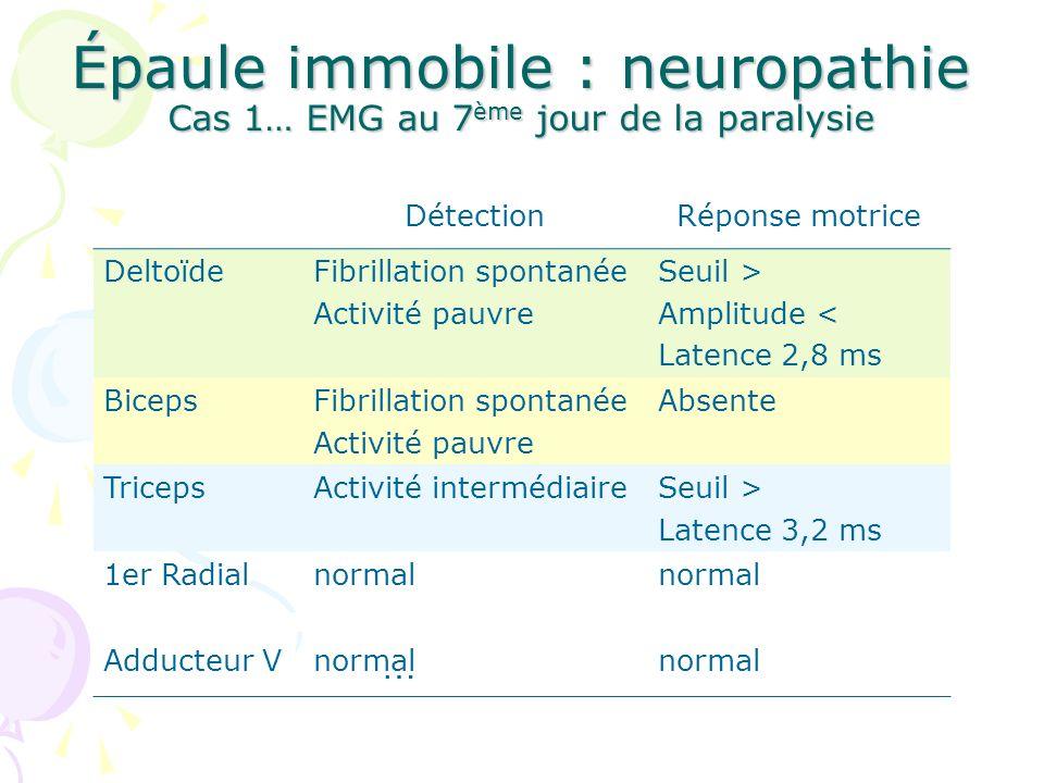 Épaule immobile : neuropathie Cas 1… EMG au 7ème jour de la paralysie