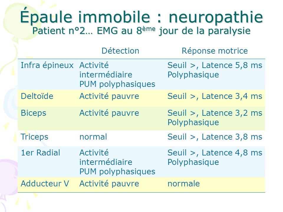 Épaule immobile : neuropathie Patient n°2… EMG au 8ème jour de la paralysie