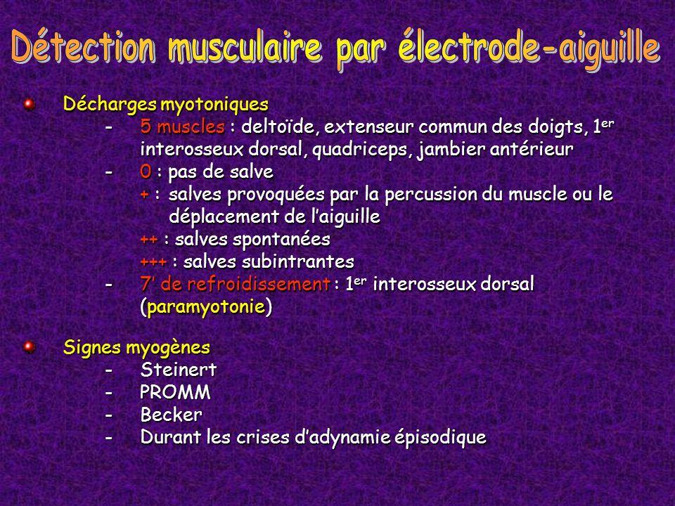 Détection musculaire par électrode-aiguille