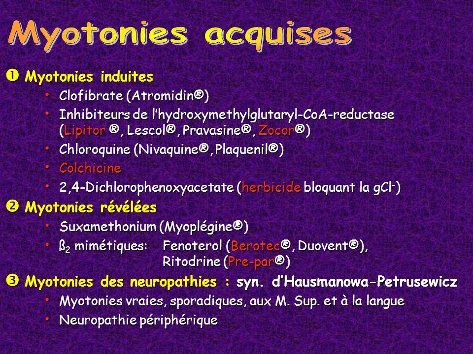 Myotonies acquises Myotonies induites Myotonies révélées