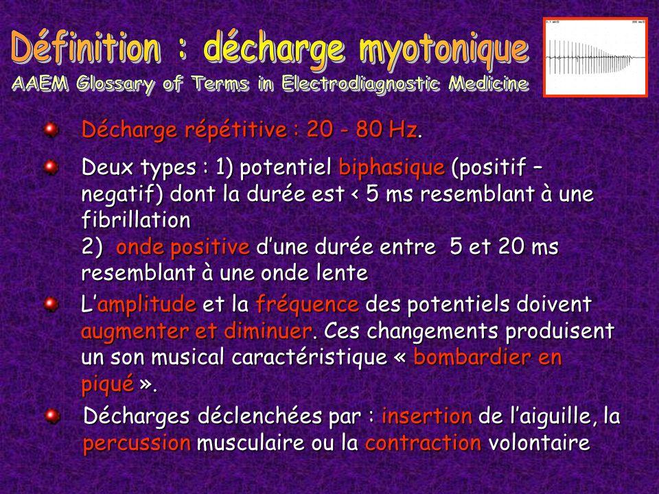 Définition : décharge myotonique