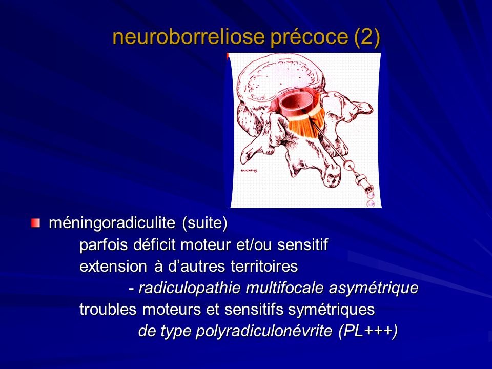 neuroborreliose précoce (2)