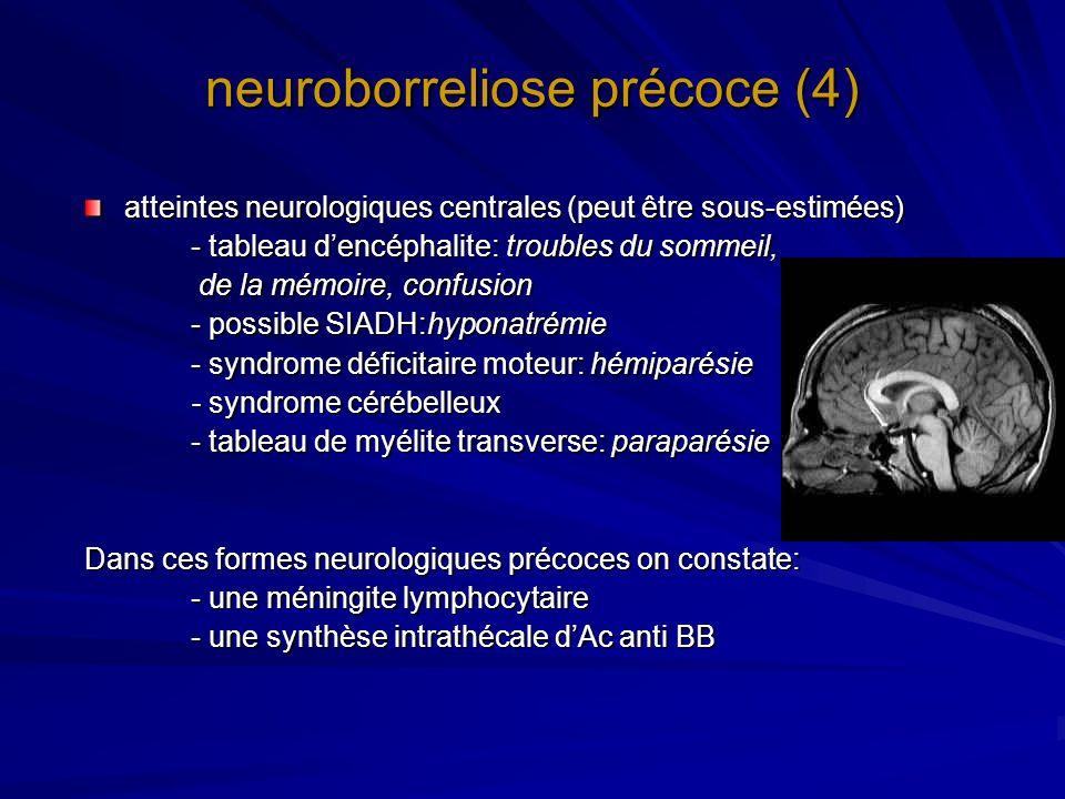 neuroborreliose précoce (4)