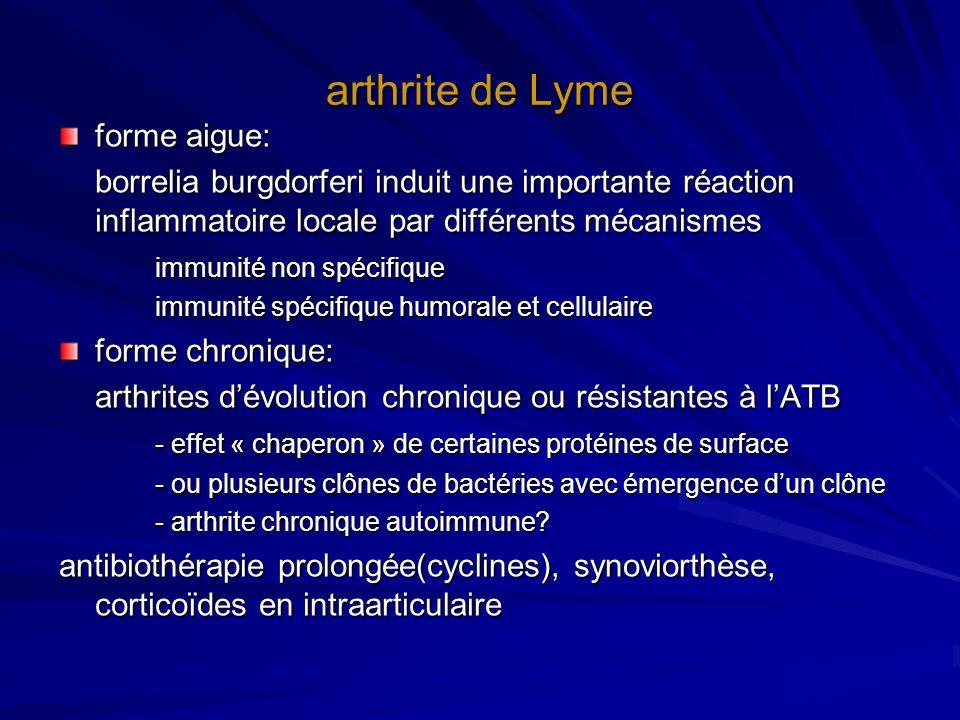arthrite de Lyme forme aigue: