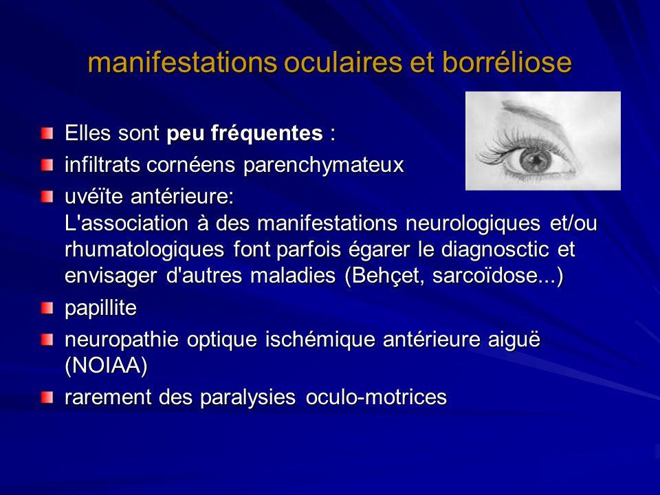 manifestations oculaires et borréliose