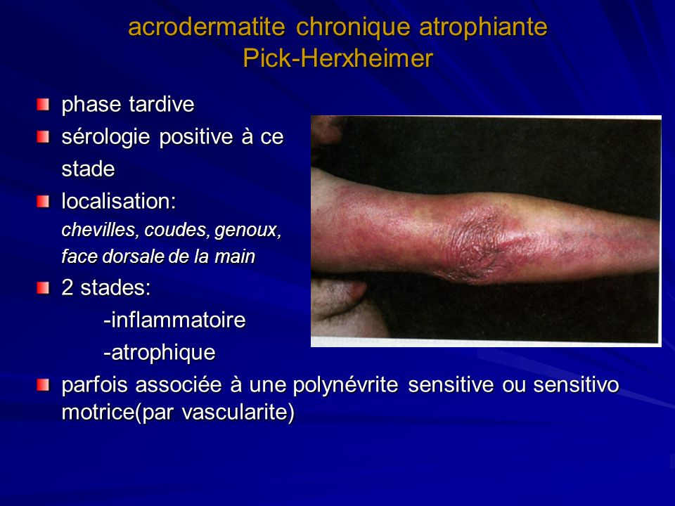 acrodermatite chronique atrophiante Pick-Herxheimer