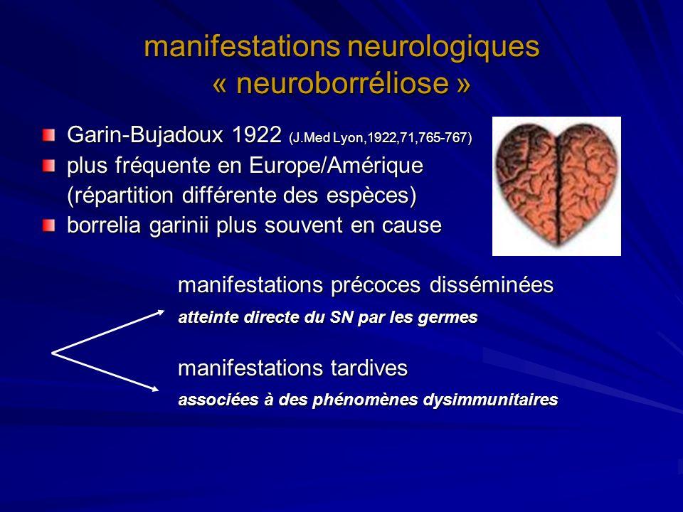 manifestations neurologiques « neuroborréliose »