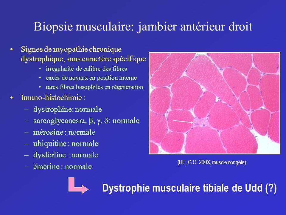 Biopsie musculaire: jambier antérieur droit