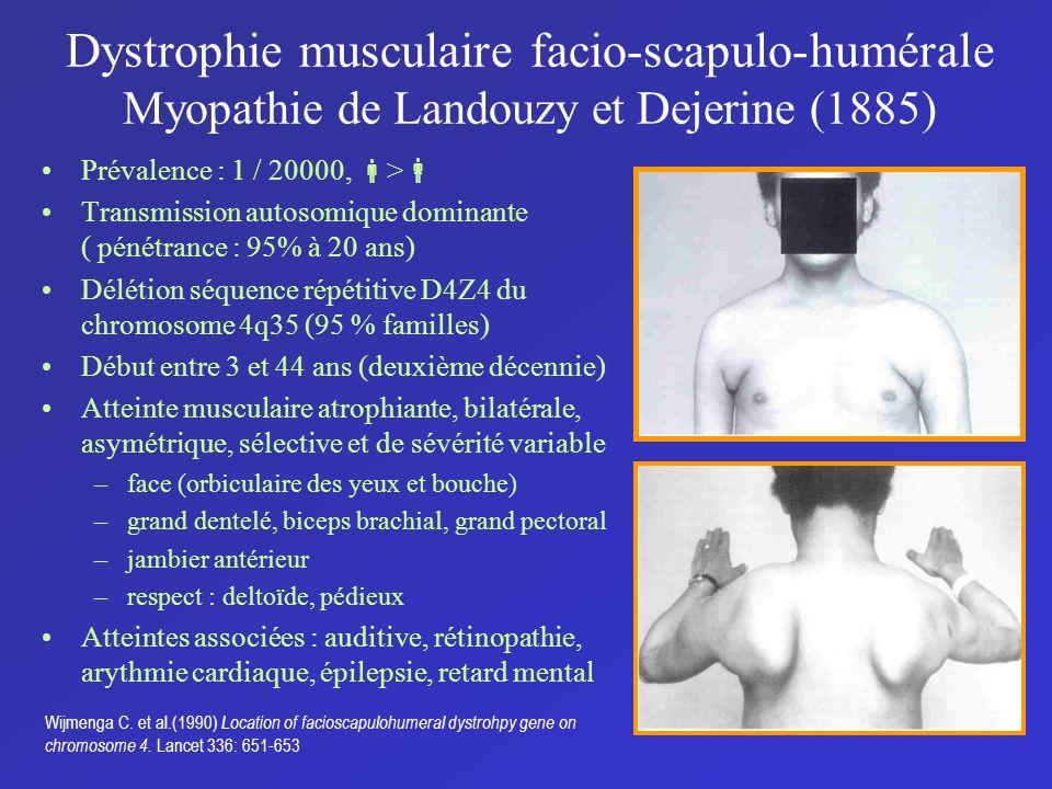 Dystrophie musculaire facio-scapulo-humérale Myopathie de Landouzy et Dejerine (1885)