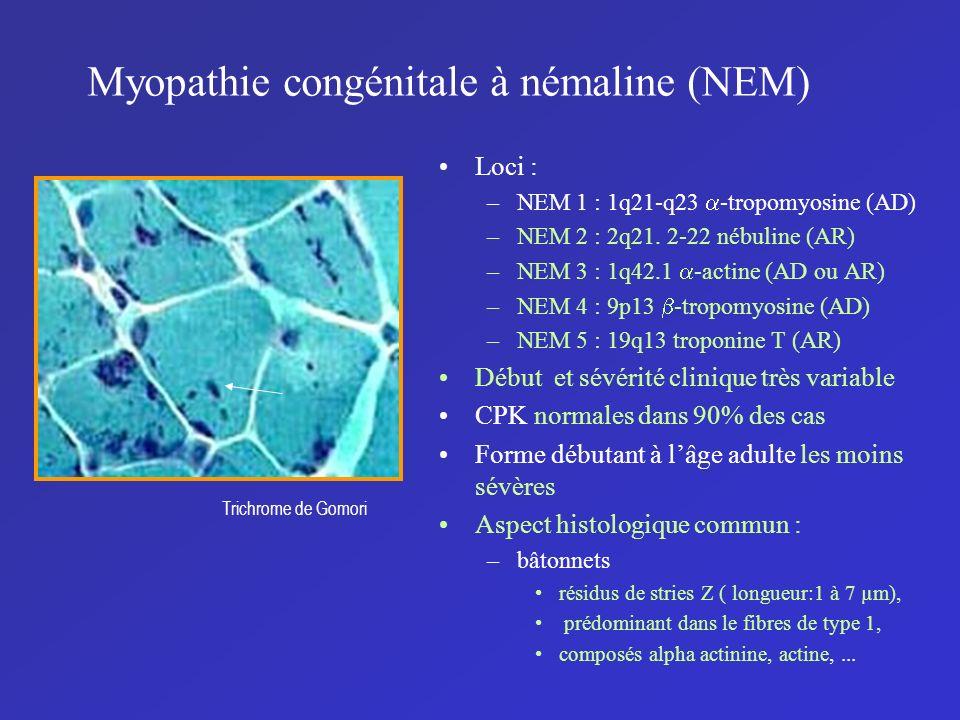 Myopathie congénitale à némaline (NEM)