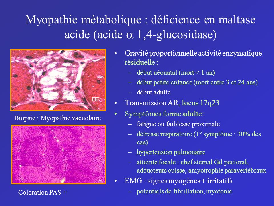 Myopathie métabolique : déficience en maltase acide (acide a 1,4-glucosidase)