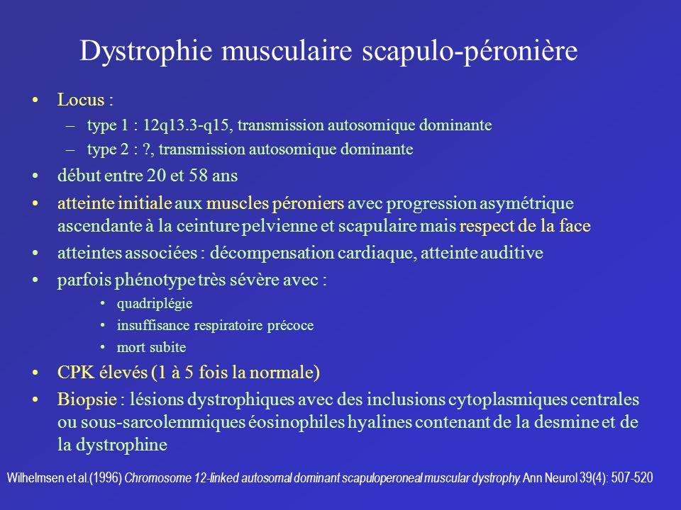 Dystrophie musculaire scapulo-péronière