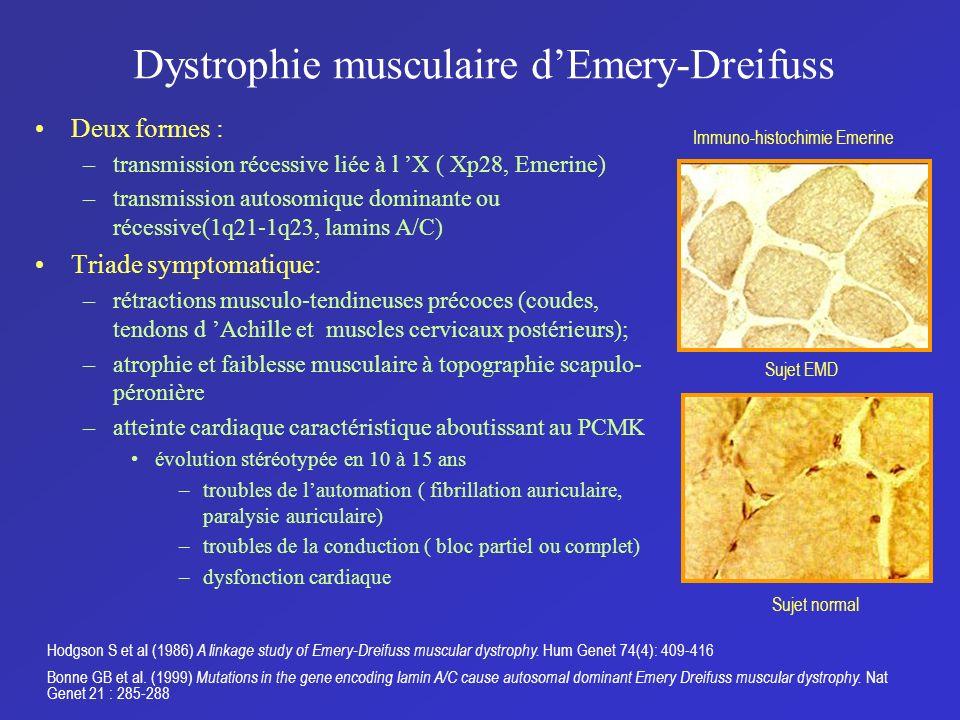 Dystrophie musculaire d'Emery-Dreifuss