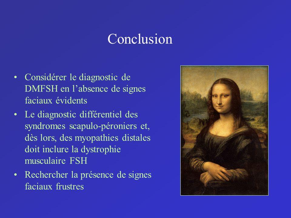 Conclusion Considérer le diagnostic de DMFSH en l'absence de signes faciaux évidents.