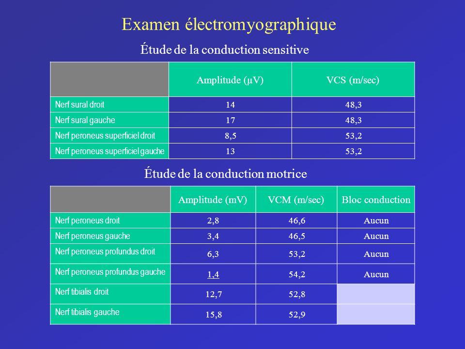 Examen électromyographique