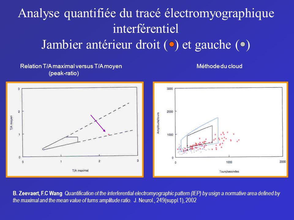 Analyse quantifiée du tracé électromyographique interférentiel Jambier antérieur droit ( ) et gauche ( )