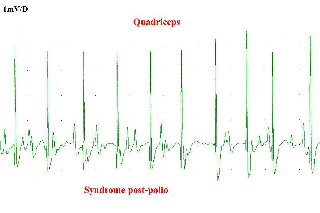 1mV/D Quadriceps Syndrome post-polio