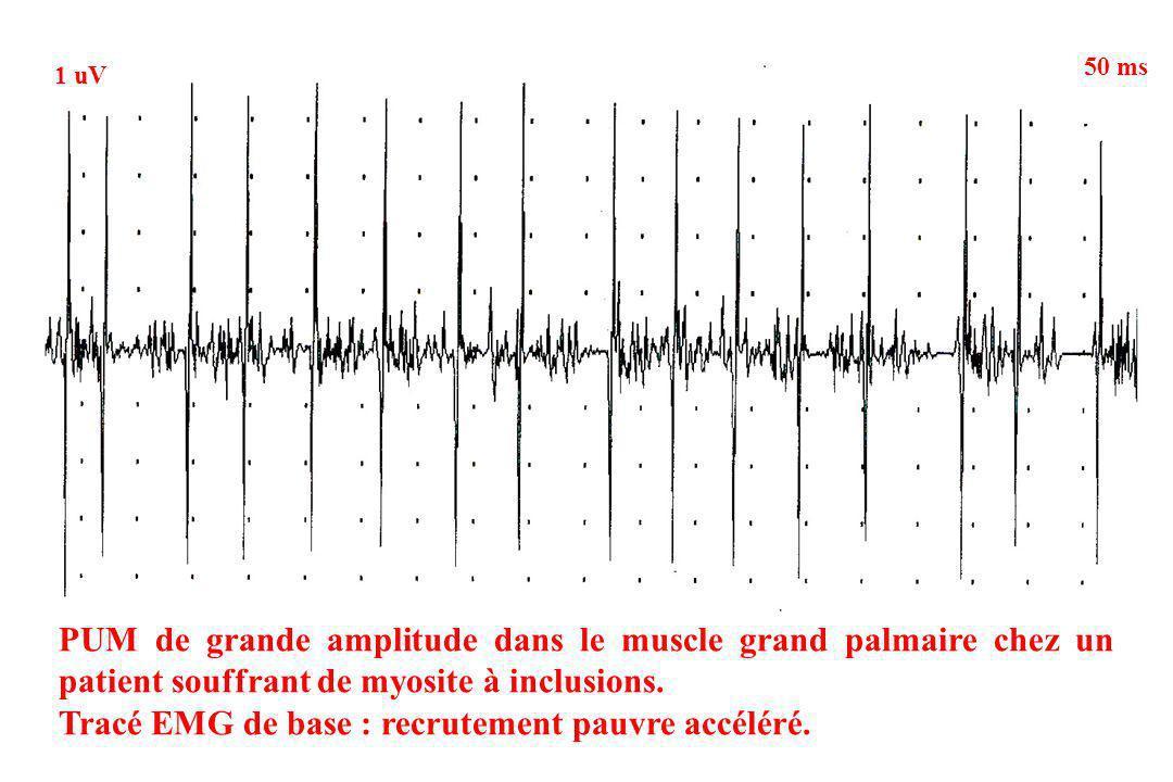 Tracé EMG de base : recrutement pauvre accéléré.