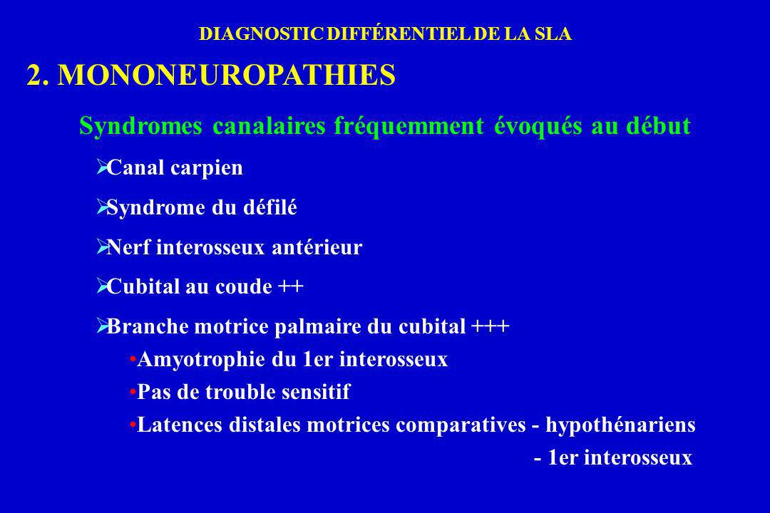 2. MONONEUROPATHIES Syndromes canalaires fréquemment évoqués au début