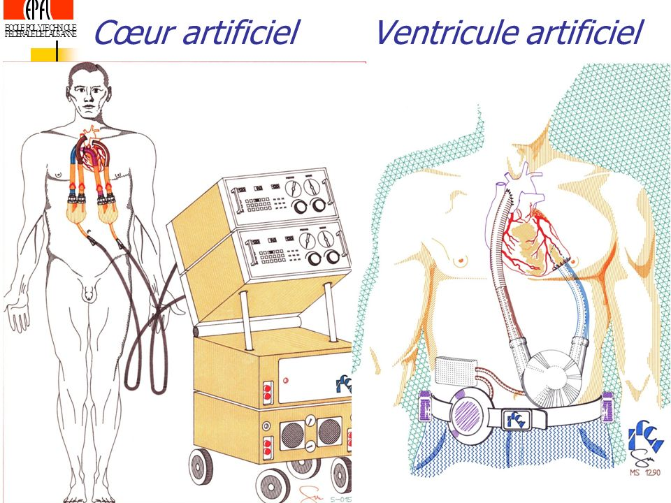 Cœur artificiel Ventricule artificiel