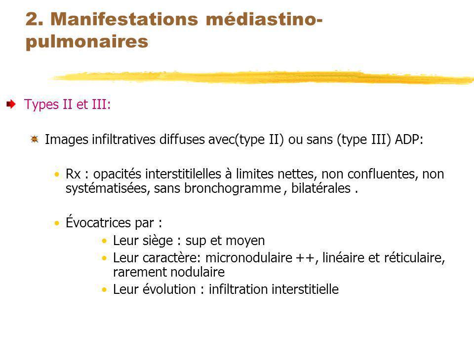 2. Manifestations médiastino-pulmonaires