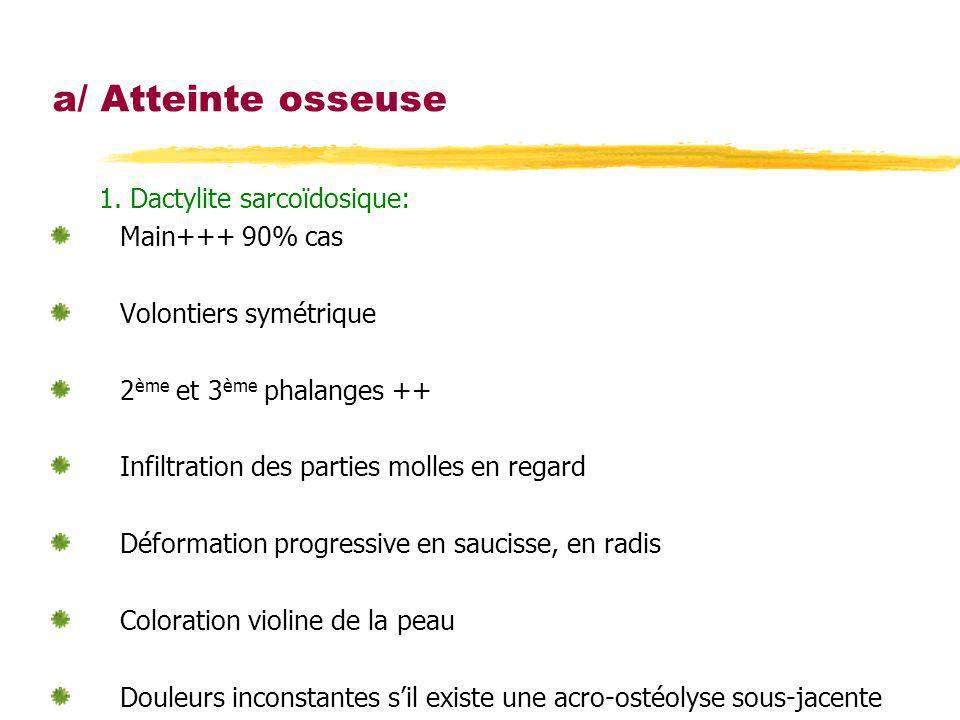 a/ Atteinte osseuse 1. Dactylite sarcoïdosique: Main+++ 90% cas