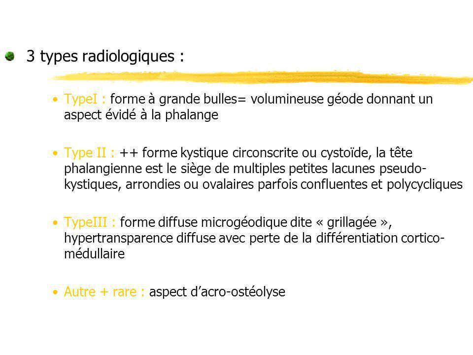 3 types radiologiques :TypeI : forme à grande bulles= volumineuse géode donnant un aspect évidé à la phalange.