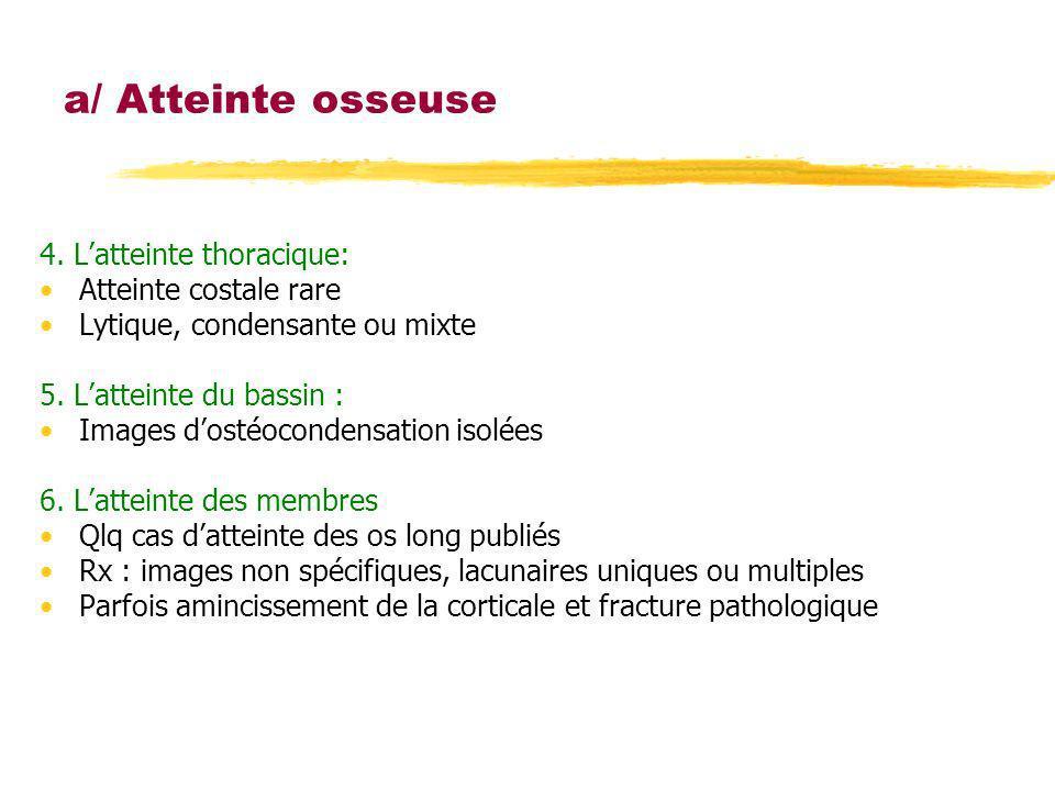 a/ Atteinte osseuse 4. L'atteinte thoracique: Atteinte costale rare