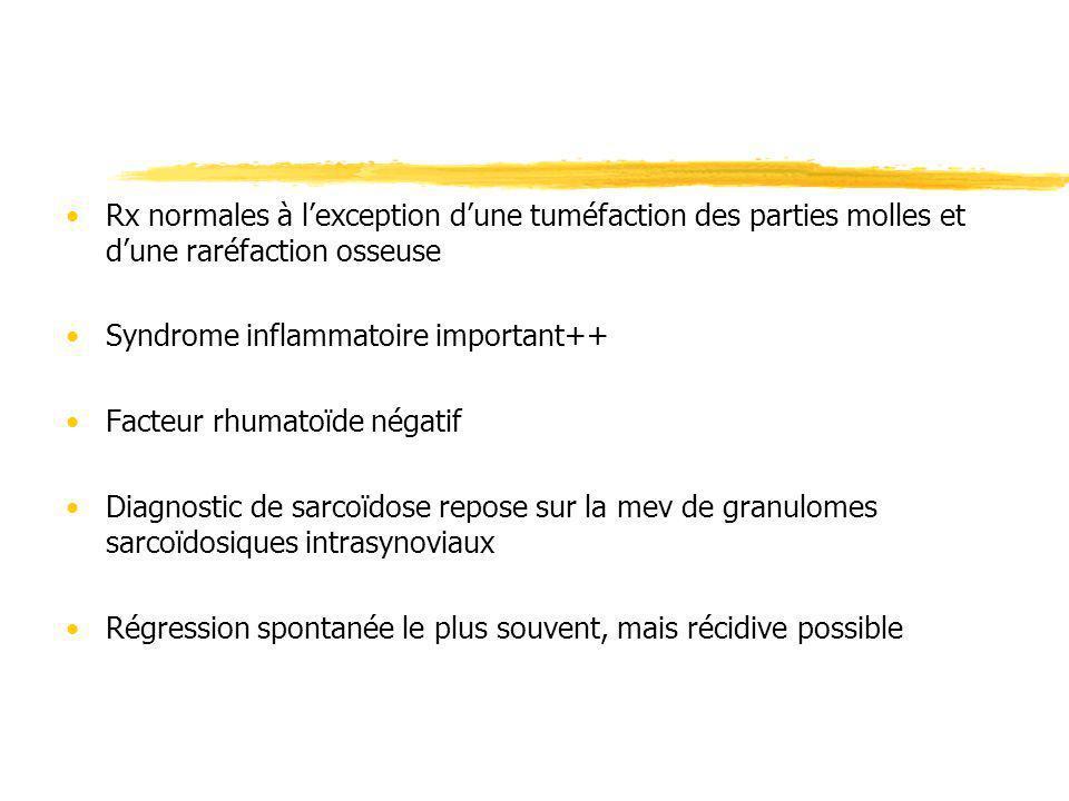 Rx normales à l'exception d'une tuméfaction des parties molles et d'une raréfaction osseuse