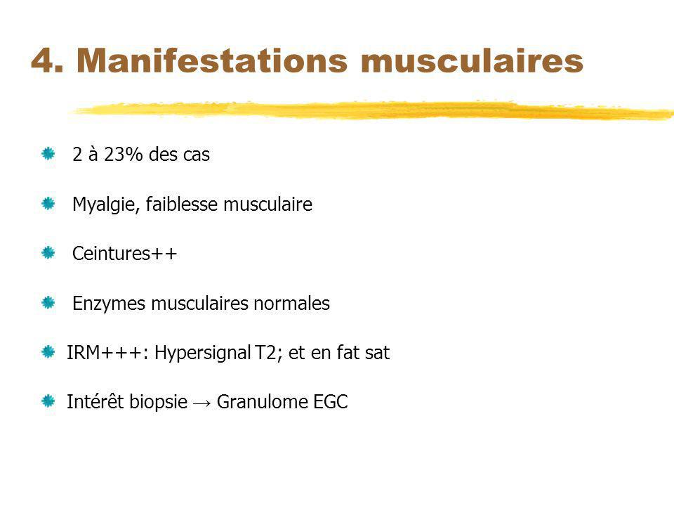 4. Manifestations musculaires