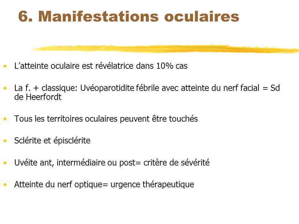 6. Manifestations oculaires