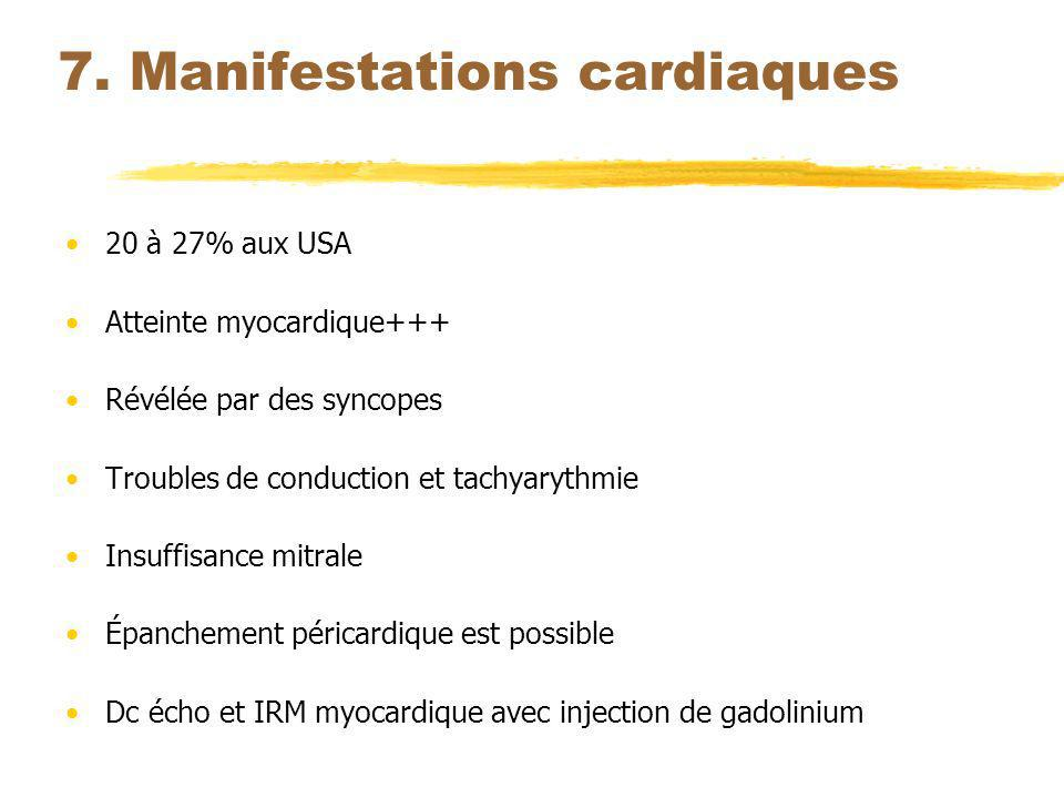 7. Manifestations cardiaques
