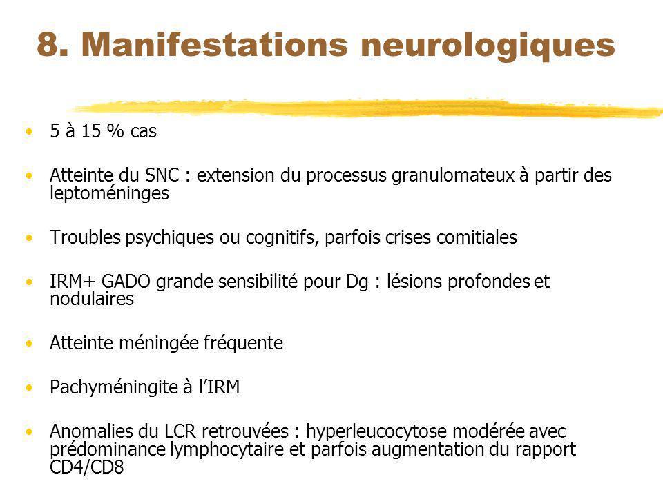 8. Manifestations neurologiques